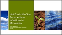 Image of Hot Fun in the Sun: Infections in Minnesota