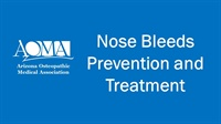 Image of Nose Bleeds – Prevention and Treatment