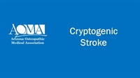 Image of Cryptogenic Stroke