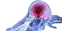 Image of Concussion and Mild Traumatic Brain Injury: The Musculoskeletal and Ne